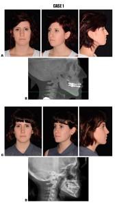 Figure 3. A, Preoperative photographs. B, Preoperative tele radiography. C, Postoperative photographs (12 months follow-up). D, Postoperative tele radiography (12 months follow-up).