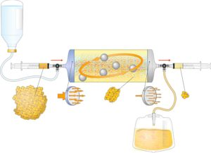 Figure 2. Schematic representation of Lipogems device. Lipogems® is a closed and immersion system. The inlet tube (blue cap) is connected to a saline bag and an outlet tube (grey cap) is connected to a urine waste bag. After making a complete filling with saline removing all air, lipoaspirates are inserted through first filter in the device. The port is completely closed by an automatic valve the transfer of the fat through the first filter create a first volumetric reduction and eliminates fibrotic tissue frustules. In next step surgeon agitates the system equipped of five stainless steel balls inside which allows oil/physiologic emulsion to be created and washed away by the flux against the gravity in the waste bag. As soon as the adipose tissue appears completely clean a second volumetric reduction of adipocyte cluster through the second filter is performed and final Lipogems® tissue is collected in the syringe.