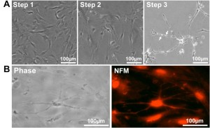 Figure 6. SwMIAMI cells can be induced to differentiate into neural/neuronal-like cells. (A) Phase contrast microscopy demonstrated increased bipolar spindle-like formation in some cells after neuronal specification (A – left panel; Step 1), with a more homogenous neural-like cell morphology developing after neuronal commitment (A – center panel; Step 2). After induction of neural differentiation for 3-7 days, a morphology closely resembling that of mature neurons with increased number of neurite like extensions and branching points was observed (A – right panel; Step 3). Arrows indicate blebbing which are characteristic of mature neurite and axon extensions (A – right panel, arrows). Immunocytochemical analysis of swMIAMI after neural differentiation (Day 7) demonstrated positive staining for neurofilament M (NFM) (B).