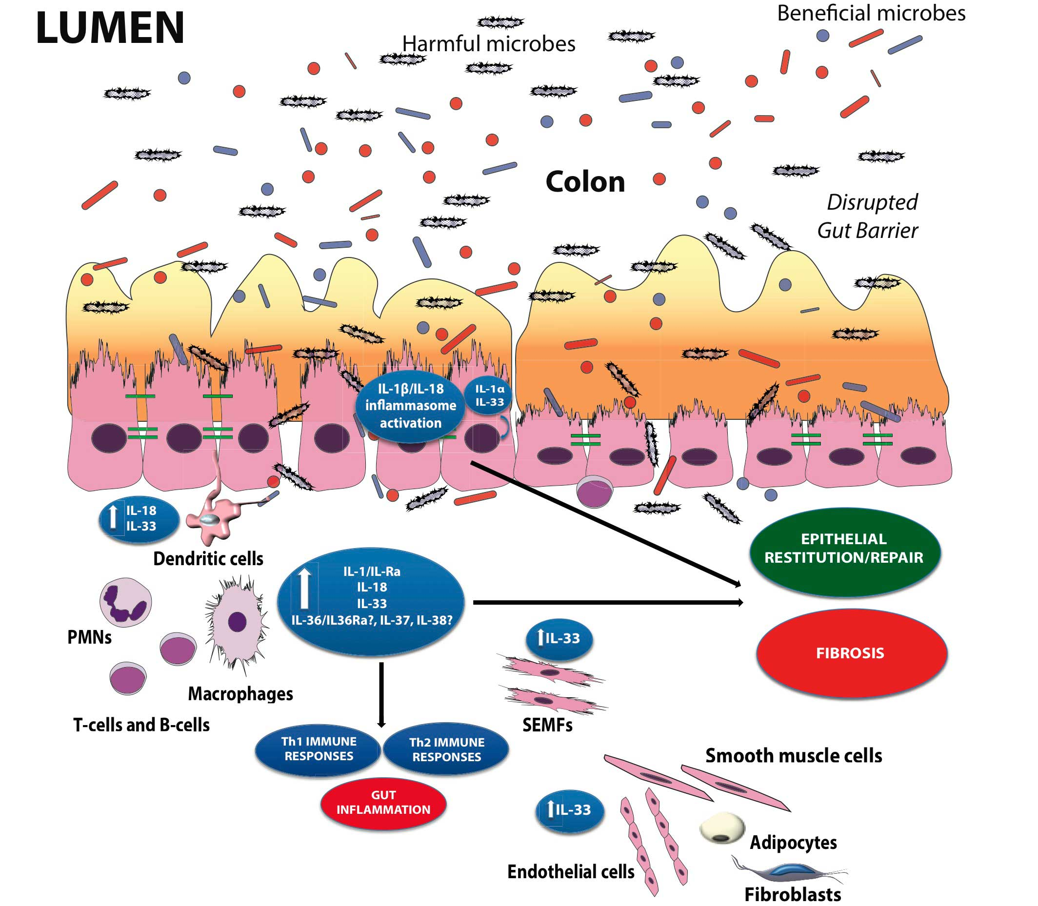 Immune System And Gastrointestinal >> Innate Immune Response And Gut Microbiota In Inflammatory Bowel